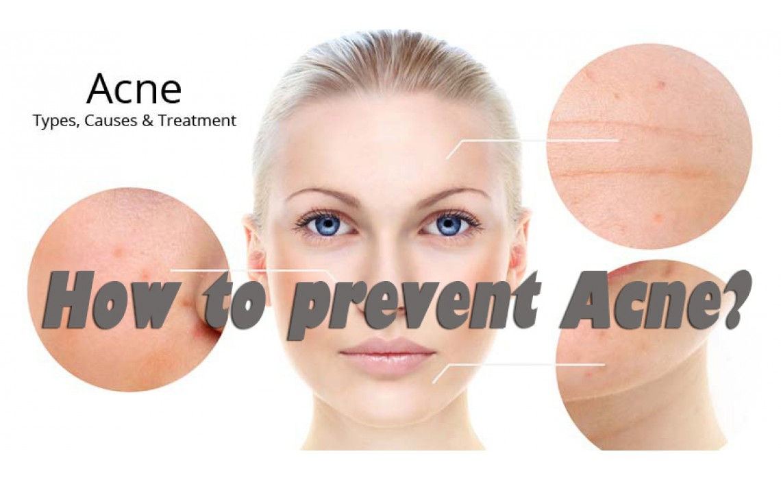 How to prevent Acne?
