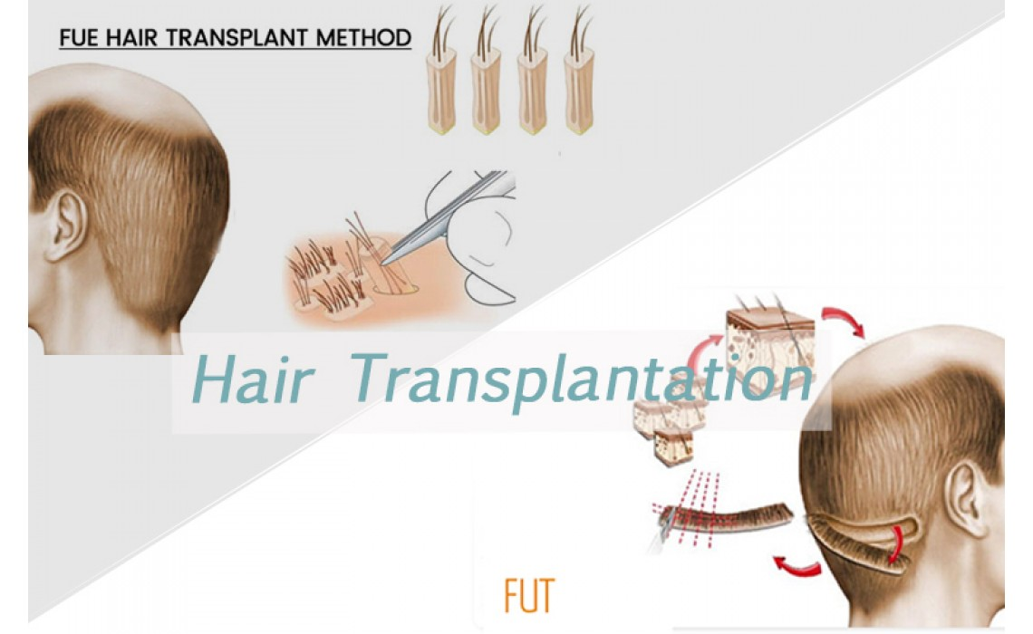 What's the difference between FUT with FUE about hair transplant?
